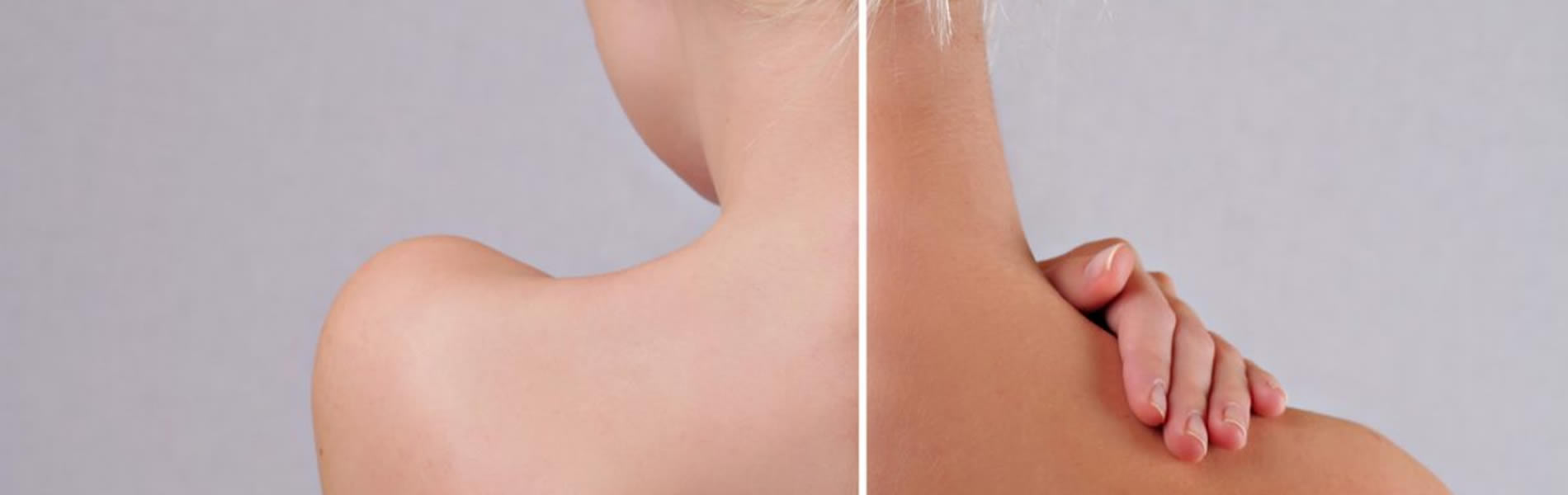 Before-After-Tanning